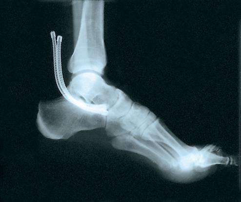 bi-lateral-ankle-brace-black-xs-211xs-74676211015-lr-2.jpg