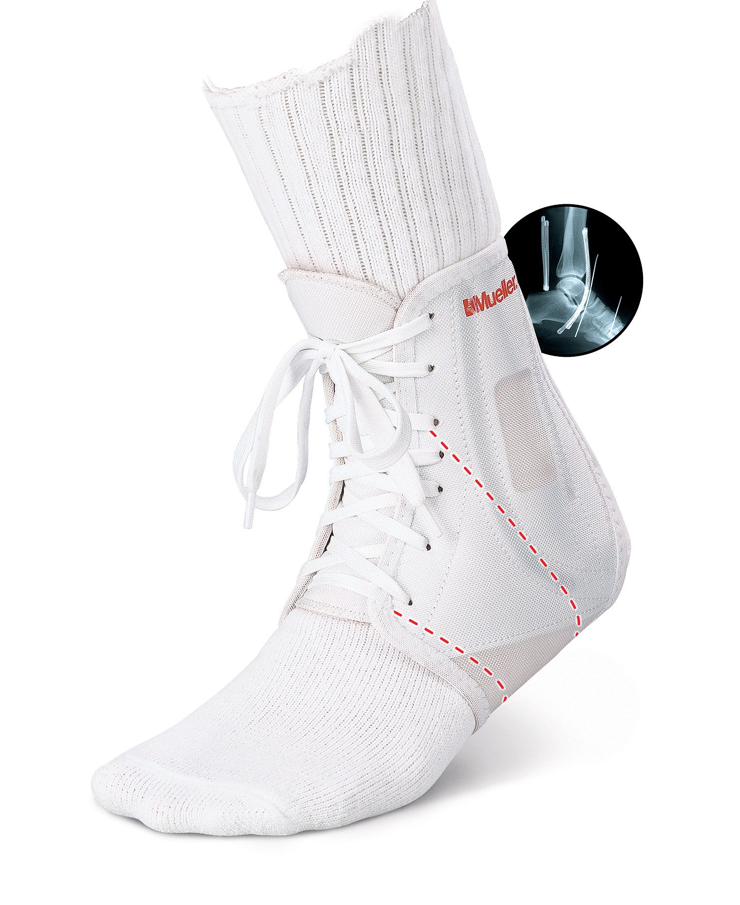 pro-level-atf-ankle-brace-white-md-212md-74676212135-lr.jpg