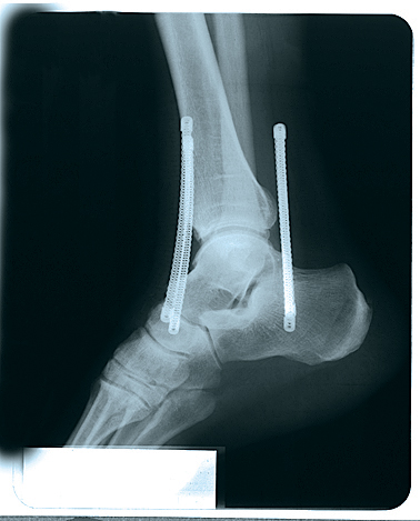 soccer-ankle-brace-black-md-209md-74676209036-lr-2.jpg