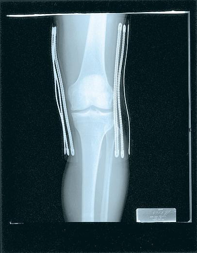 wraparound-knee-brace-deluxe-black-xxxl-230xxxl-74676637068-lr-3.jpg
